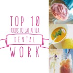 Top 10 Foods To Eat After Dental Work. Because you know you're hungry even though your mouth hurts.